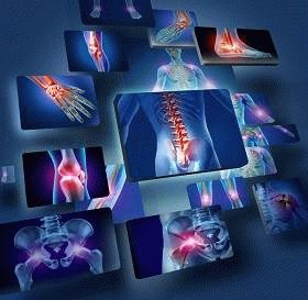 как лечить ревматоидный артрит в израиле